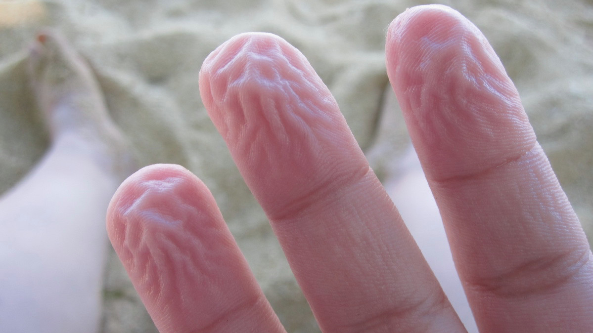 6. Разбухание кожи от влажности. Защитные системы, организм, человек
