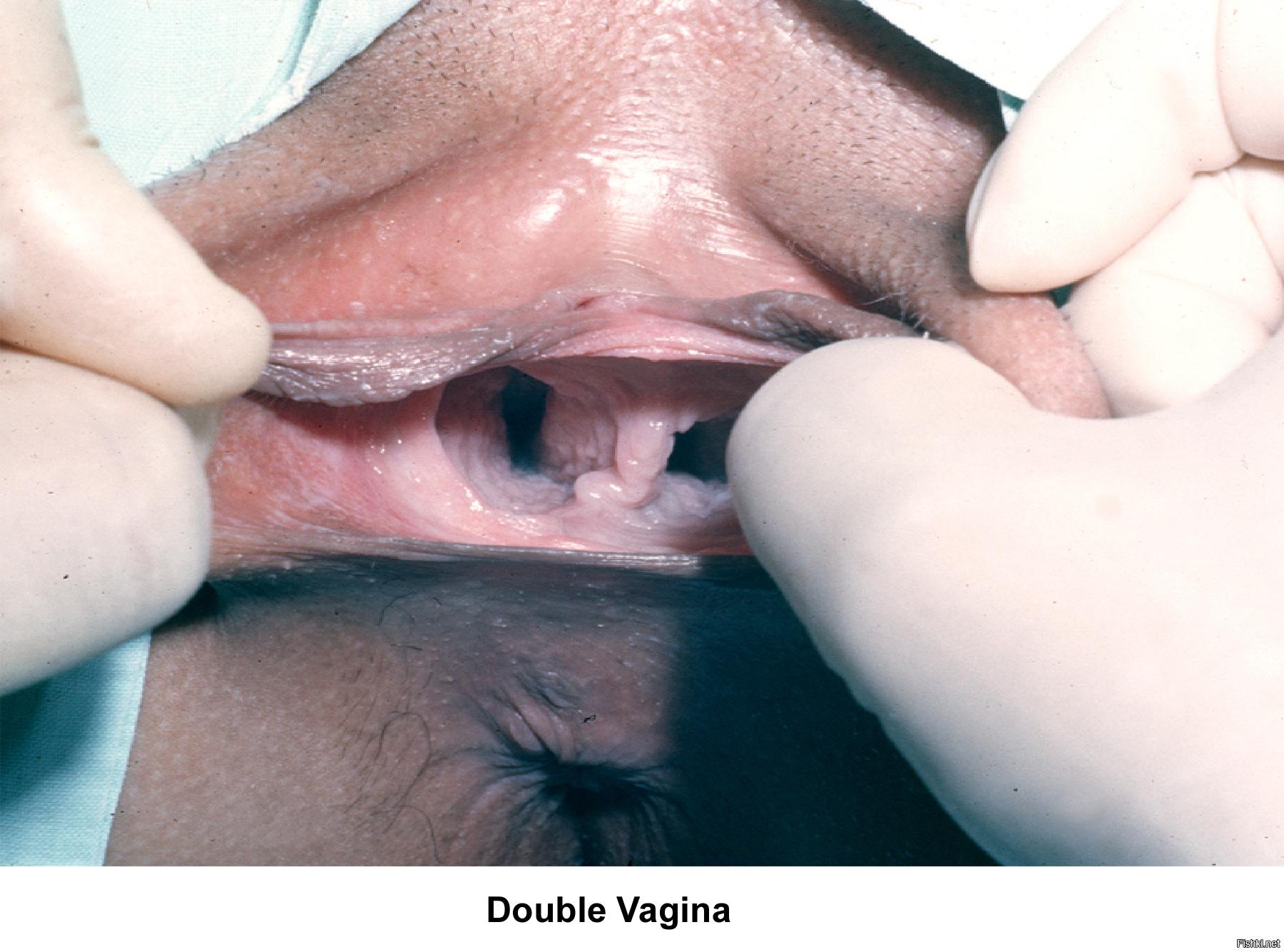 две вагины