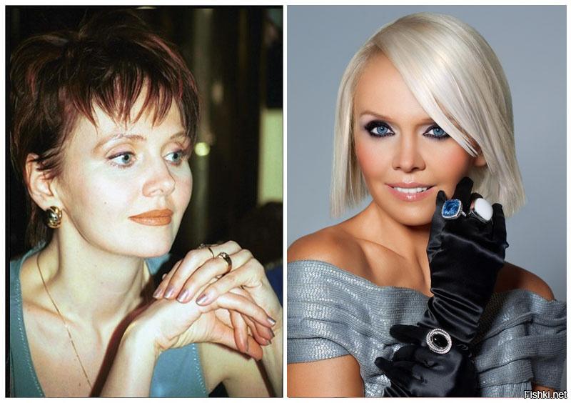 Певица валерия до и после пластики фото