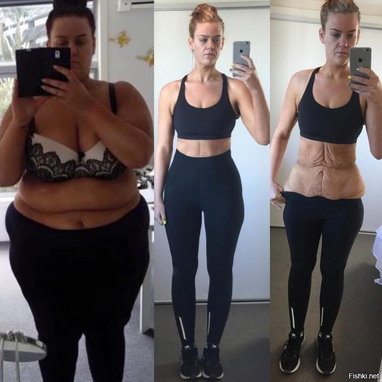 Восстановление После Сильного Похудения. Как подтянуть обвисшую кожу после быстрого похудения?