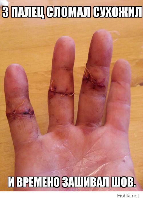 Если вам приснилась правая рука, лишенная пальцев, то наяву вам суждено потерять близкого родственника или даже своего собственного ребенка (возможно, что племянника).
