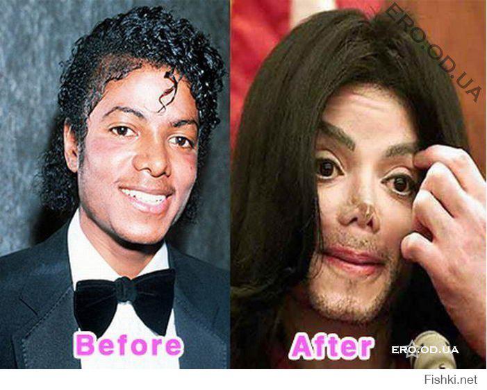 Жертвы пластических операций до и после фото